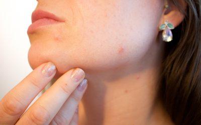 4 tips voor het verbeteren van je huid